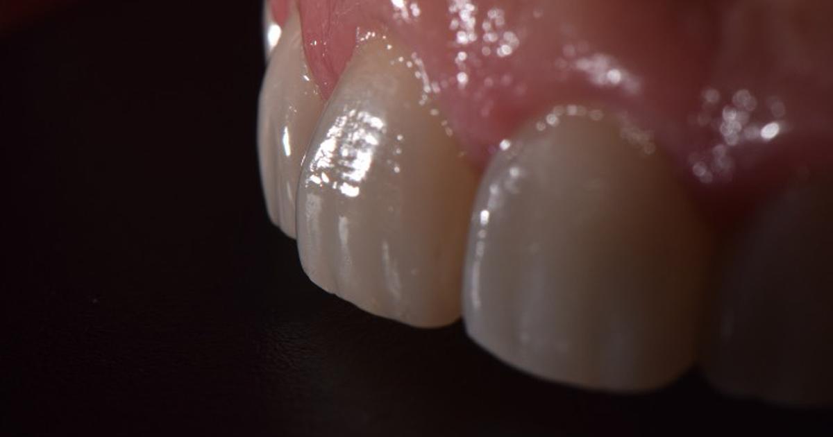 Fechamento de Diastema com Resina Composta Direta como Método Eficaz Estético e Funcional Após Finalização Ortodôntica