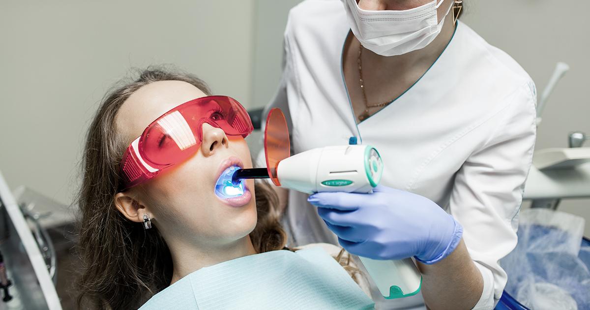 Clareamento dental após a remoção do aparelho ortodôntico fixo