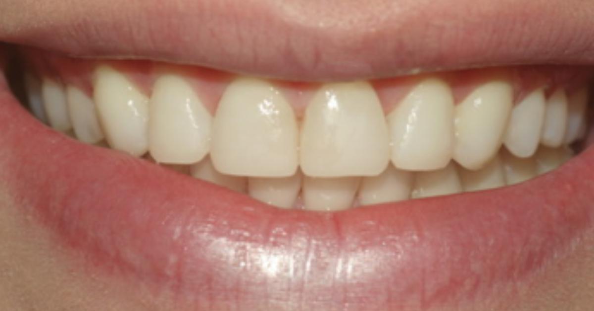 Reabilitação Estético-Funcional com Resina Composta Charisma Diamond em Paciente com Erosão Dental