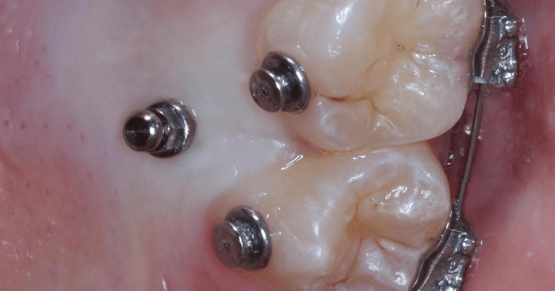 Mini-Implantes no palato. O que você precisa saber?