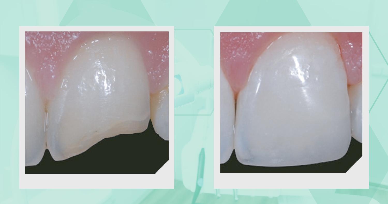 Reabilitação estética em dente lesionado por trauma