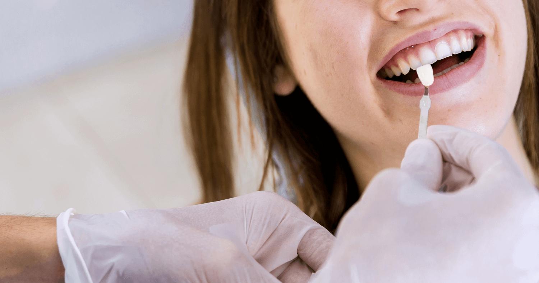 Clareamento dental em dentes vitais