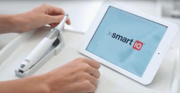Motor rotatório X-SMART IQ: Você a um toque do futuro