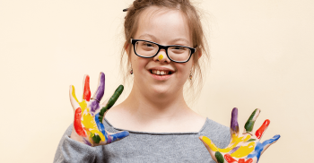Odontopediatria: pacientes com Síndrome de Down