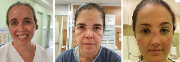 Imagem mostra mulheres com lesões no rosto