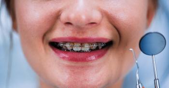 Ortodontia: Dicas para encantar os pacientes