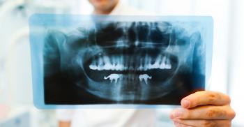 Radiografia Odontológica: saiba tudo!