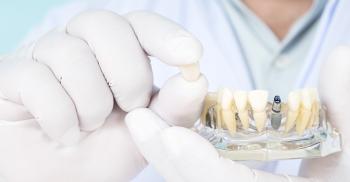 Como escolher uma marca de implantes dentários?