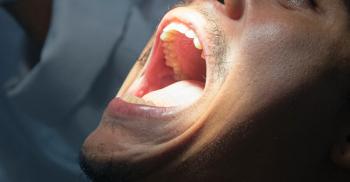 Biópsia na Odontologia: passo a passo