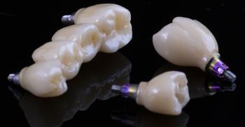 """Implantes Imediatos: Tipos de enxerto para preenchimento do """"gap"""""""