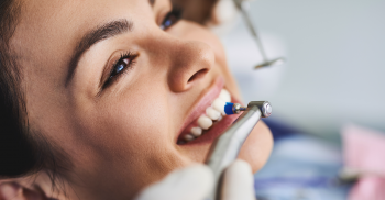 Profilaxia dentária: Saiba como otimizar o procedimento e ter sucesso na remoção de  manchas e biofilme