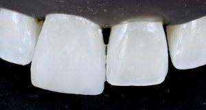 Implante imediato em área estética com temporização: abordagem múltipla